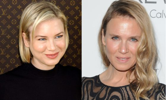 clinicasarabia.Renee Zellweger antes despues