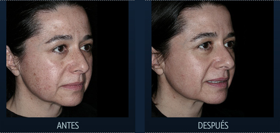 Resurfacing, tratamiento facial para arrugas laser CO2